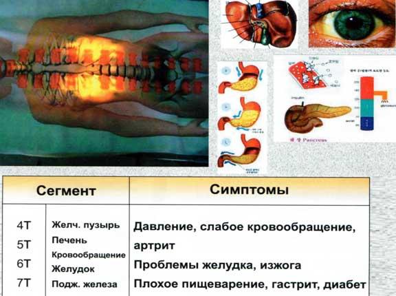Проблемы грудного отдела позвоночника