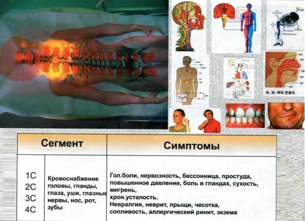 Болит в спине слева между лопаткой и позвоночником