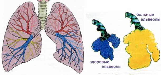 Лёгкие и бронхи