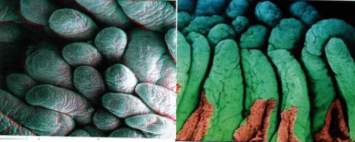 Здоровые ворсинки кишечника слева и зашлакованные справа на фото