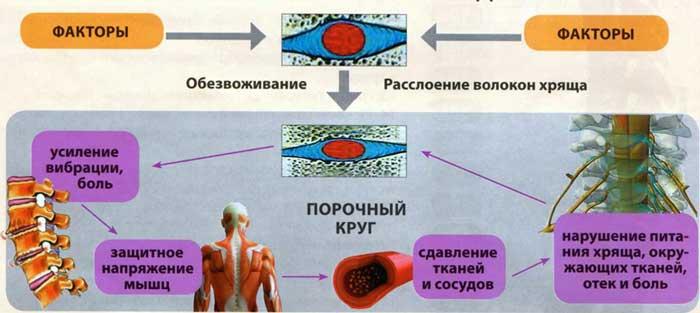Возникновение остеохондроза