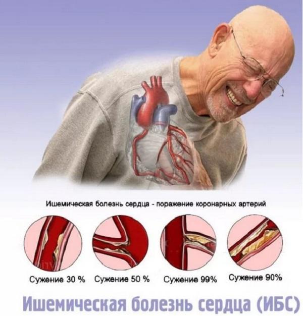 ищемическая болезнь сердца
