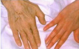 рука здорового человека и человека больного пернициозной анемией