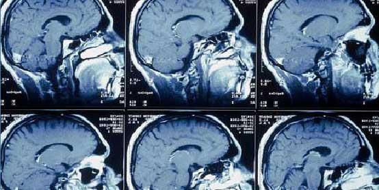 обледование мозга