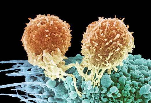 лечение рака, инновационные способы