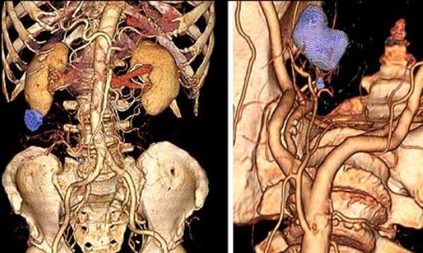 Позитронно-эмиссионная томография результаты
